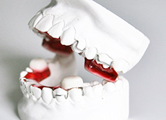 Ganzheitliche Zahnspange: Der Twin Block für Kinder.