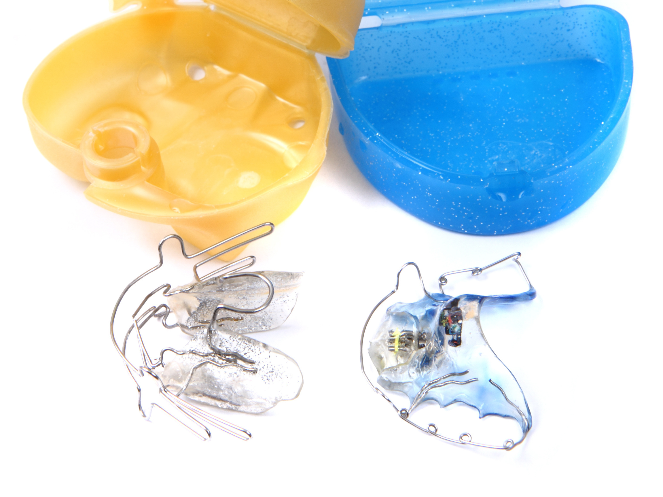 Lose Zahnspangen: Ein Bionator und eine aktive Platte.