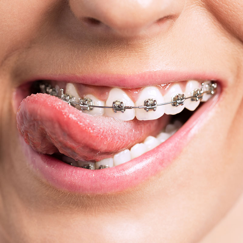 Eine Zahnspange ist immer individuell und nie Standard.