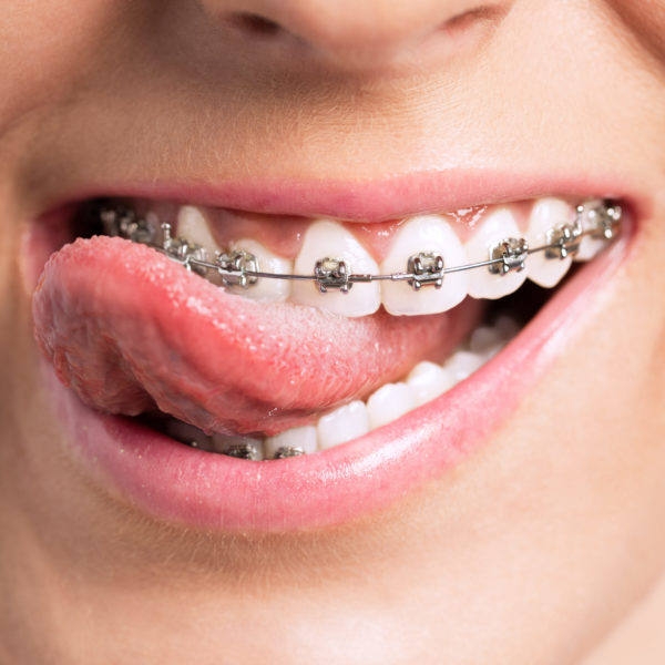Feste Zahnspangen sind echte Alleskönner in der Kieferorthopädie.