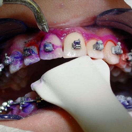 Die professionelle Zahnreinigung gibt es auch für Träger von festen Zahnspangen.