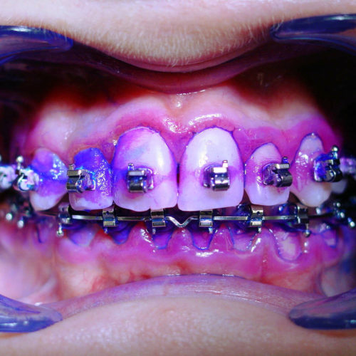 Die professionelle Zahnreinigung bei fester Zahnspange entfernt auch Schmutz an schwierigen Stellen.