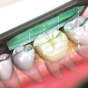 Der Mundraumscanner tastet das Gebiss ab und fertigt ein 3D Bild an.