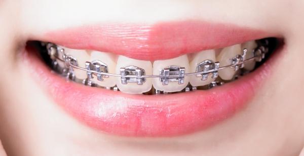 feste Zahnspange mit Standardbrackets