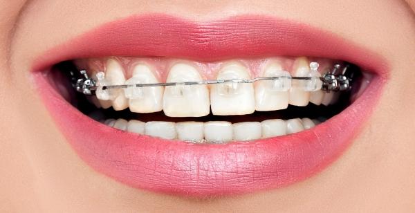 Zahnspange für Erwachsene mit Keramikbrackets