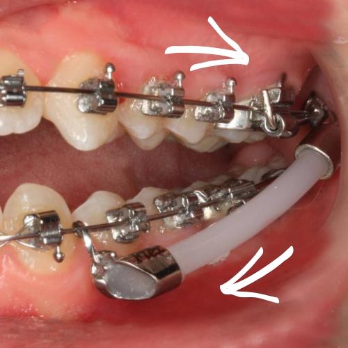 Zahnkorrekturen mit fester Zahnspange - schnell und ohne Mitarbeit.