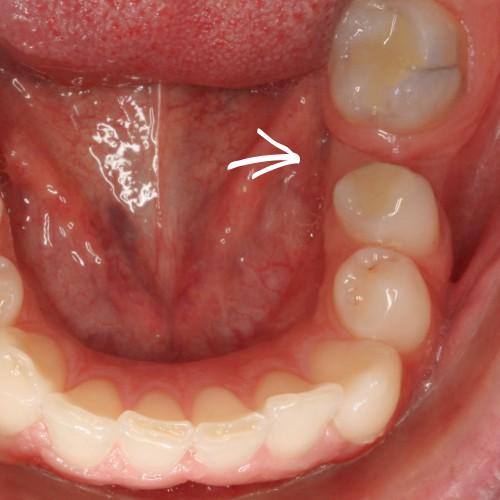 Dank einer Zahnspange wird hier Platz für den Zahnersatz gemacht.
