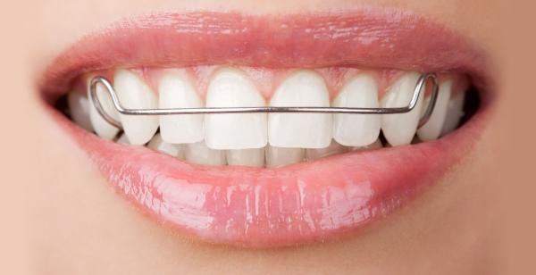 lose Zahnspange im Mund