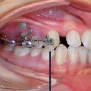 Unsichtbare Zahnkorrekturen mit Hilfe von Mini-Implantaten.