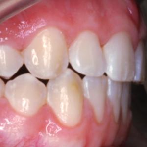 Minipins für eine perfekte Zahnstellung.