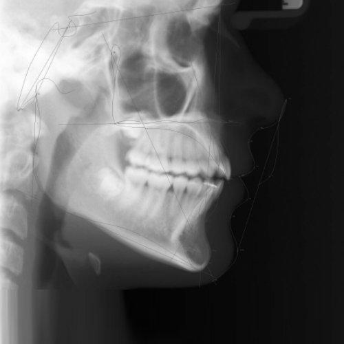 Unsere kieferorthopädische Praxis fertigt die digitale Röntgenaufnahmen vor Ort an.