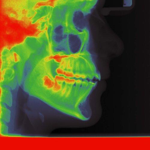 Digitale Röntgenverfahren sind in unserer kieferorthopädischen Praxis Standard.