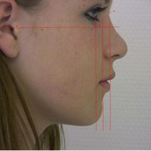 Unsere Kieferorthopäden verwenden auch Bilder zur Erstellung der Behandlungsunterlagen.