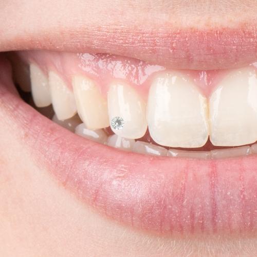 Schmucksteine für die Zähne - für ein strahlendes Lächeln.