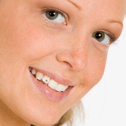 Schmucksteine für die zähne sind ein Hingucker.