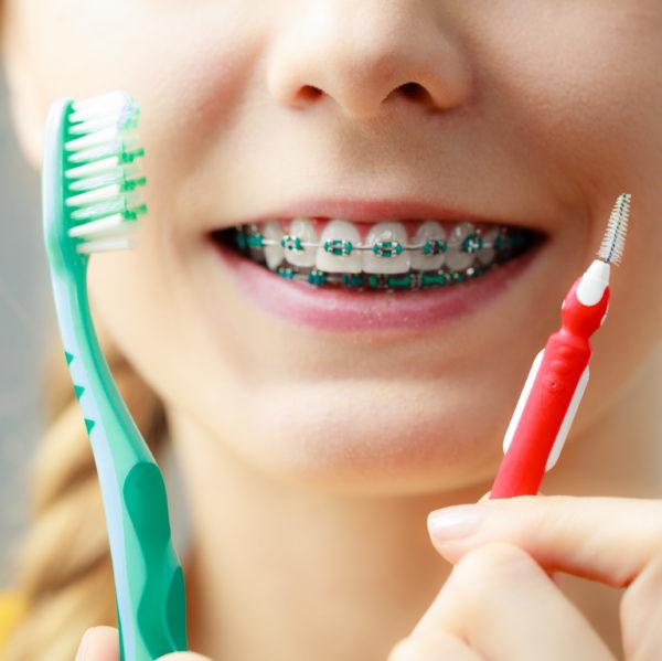 Tipps zur Mundhygiene bei Zahnspange