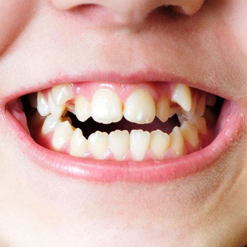 Zahnkorrekturen bei schiefen Zähnen