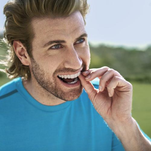 Unauffällige Zahnkorrektur dank durchsichter Zahnschienen.
