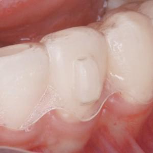 Invisalign Attachment zur besseren Zahnkorrektur.
