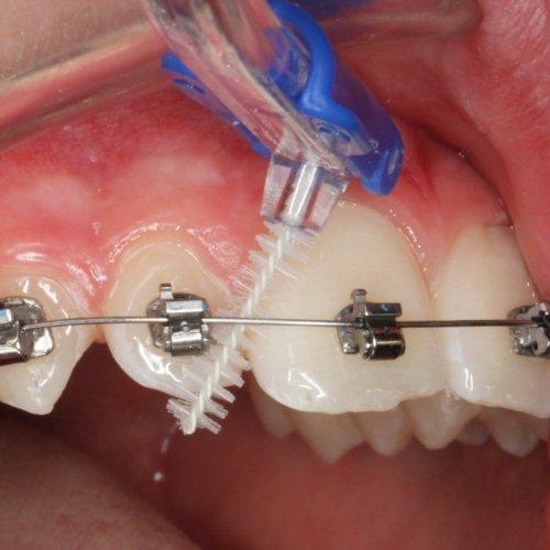 Mundhygiene bei fester Zahnspange