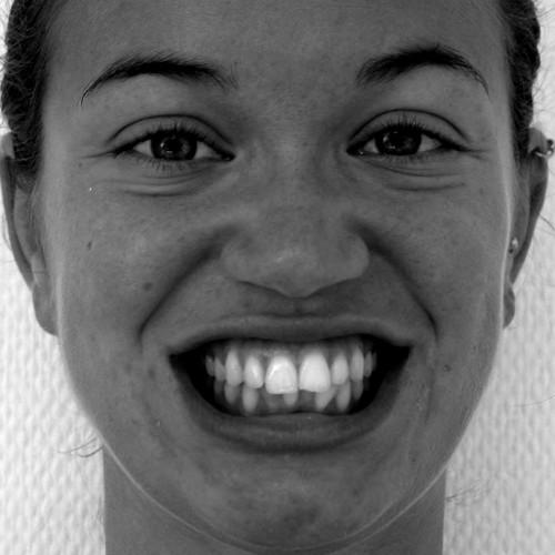 Zahnspange Erwachsene: Vorher Nachher
