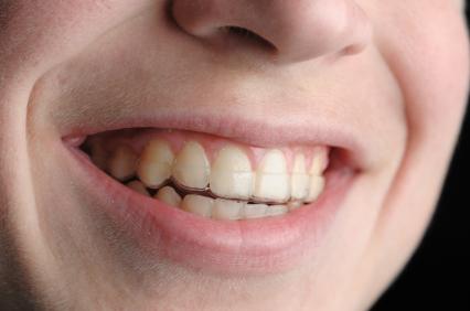 Zahnschiene Passform