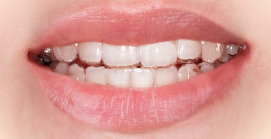 Unsichtbare Zahnspange von Invisalign