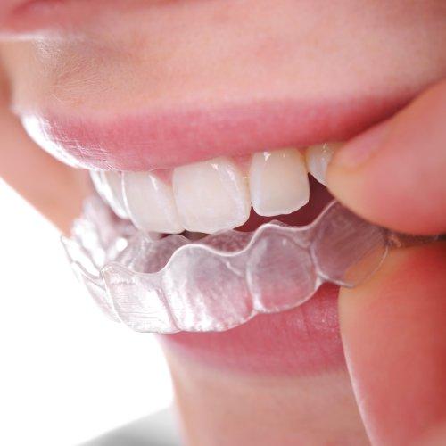 So wird die durchsichtige Zahnschiene von Invisalign eingesetzt.