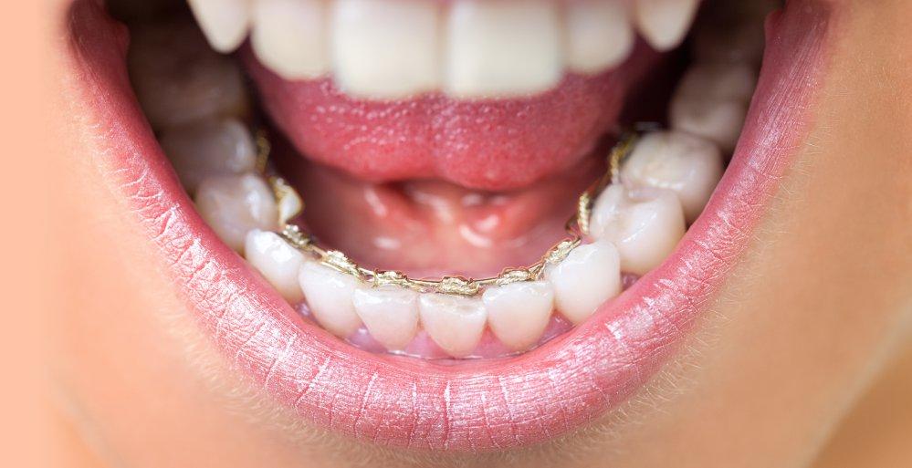 Linguale Zahnspange im Mund