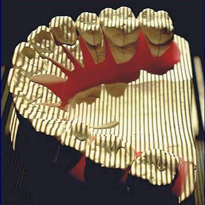 3D Scan für Linguale Zahnspange