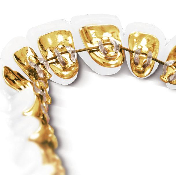 Die Brackets aus Gold stören bei der Incognito Lingualtechnik gar nicht.