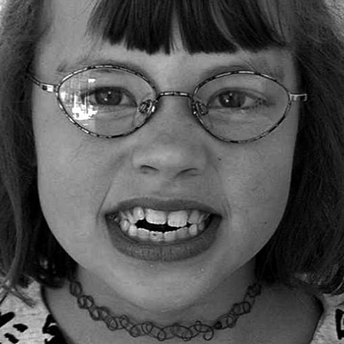 Zahnspange Kinder: Vorher Nachher