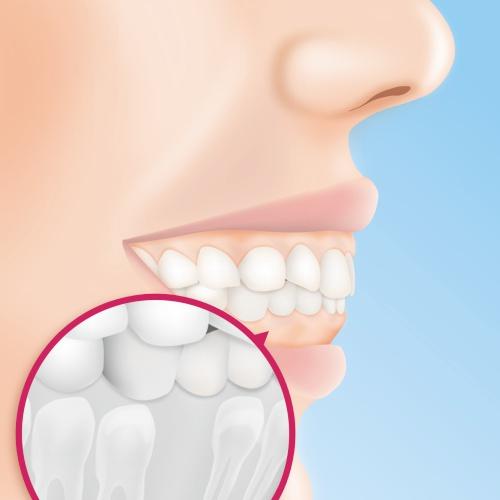Zahnkorrektur vorher nachher