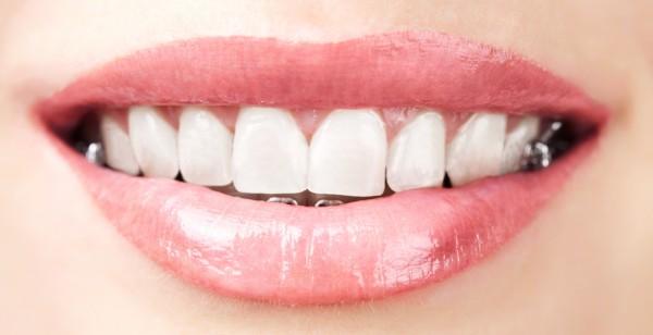 Zahnspange für Erwachsene im Seitenbereich