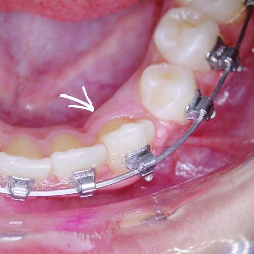 Thermoealstischer Bogen bei fester Zahnspange