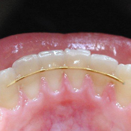 Stabilisierung nach der Zahnspange