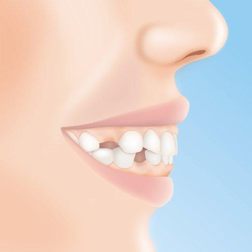 Zahnlücken vorher nachher Bilder