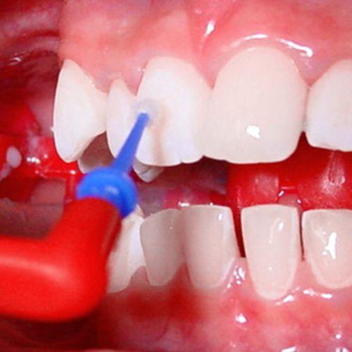 Die Oberflächenversiegelung bei fester Zahnspange wird direkt auf die Zähne aufgetragen.