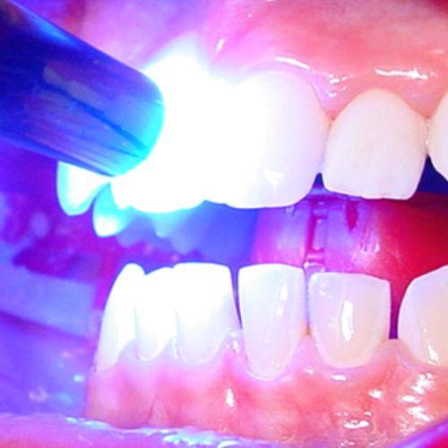 Bei fester Zahnspange ist ein Schutzlack unbedingt notwendig.