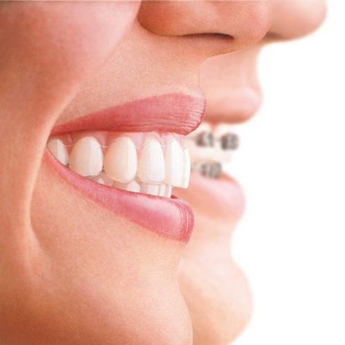 Invisalign-Zahnspange für Kirchheim Lkr. Esslingen